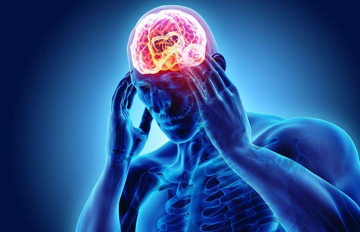 Is CBD Oil Effective for Migraine Pain